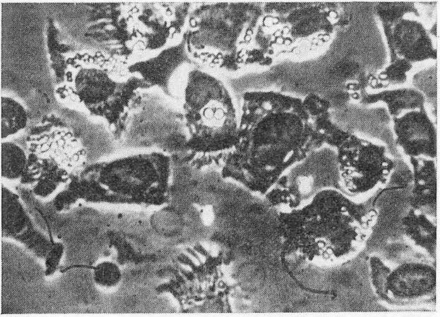 Призматичні епітеліальні клітини каналу шийки матки