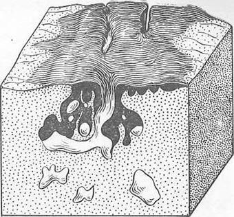 поразку вагінальної частини шийки матки преінвазивний раком з вростанням в залози