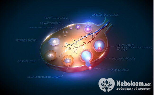 Синдром полікістозних яєчників