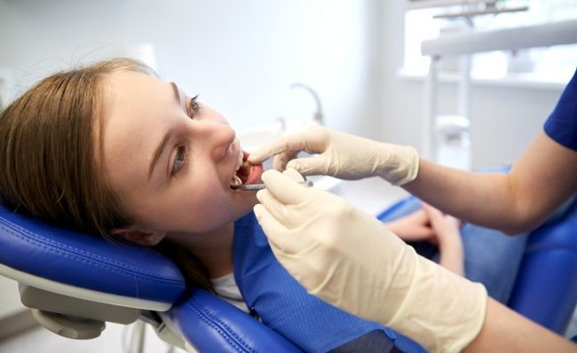 Причини білих плям на зубах
