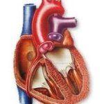 Набуті вади серця - дефекти серцевих перегородок