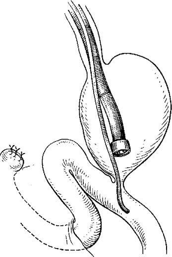 Методика проведення зонда через ендоскоп