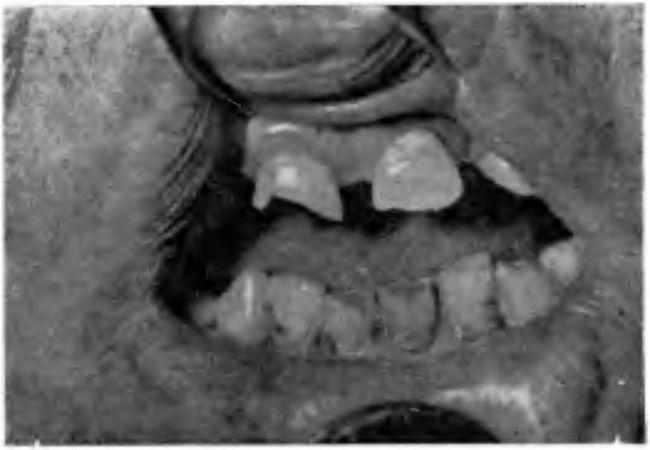 Патологічна стертість зубів