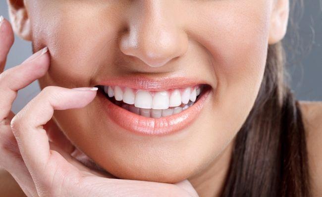 Профілактика хвороб зубів