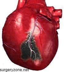 Прогноз при інфаркті міокарда