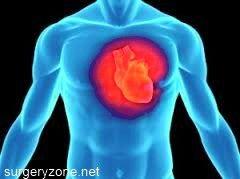 Прогноз при кардіосклерозі