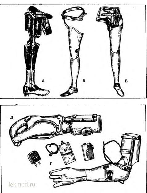 протези