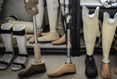 Протези ноги
