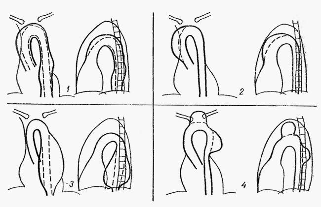 Розширення аорти