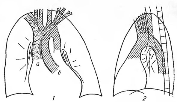 Розширення плече-головних судин