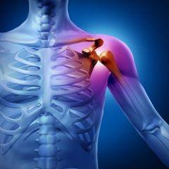 Мета лікування реактивного артриту - усунення первинного вогнища інфекції