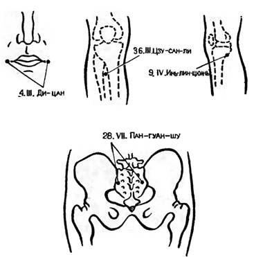 Точки акупунктури використовуються в післяопераційному періоді при рефлекторної затримки сечовипускання