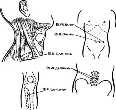 Точки акупунктури, використовувані для усунення післяопераційного парезу кишечника