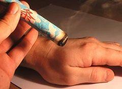 Термопунктура - метод рефлексотерапії
