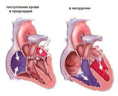 Ревматизм серця схема