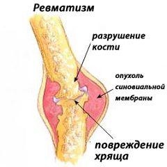 Біль і набряки в хворих суглобах - симптоми ревматизму