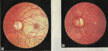 Стадії діабетичної ретинопатії