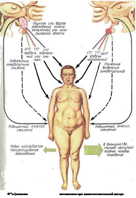 адипозогенитальная дистрофія