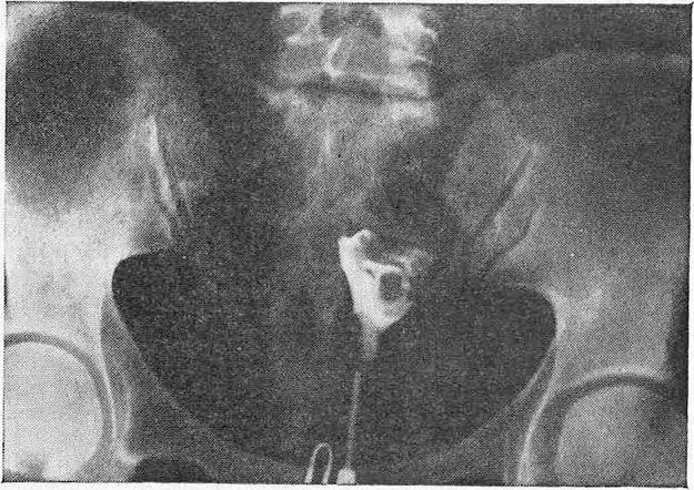 Гісторограмма хворий на рак тіла матки