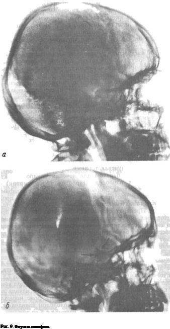 пухлина гіпофіза