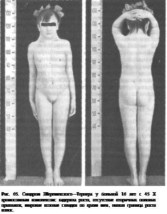 Синдром Шерешевського - Тернера