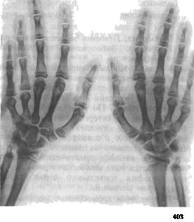 Синдром Шерешевського-Тернера. Скорочення окремих .остей кистей