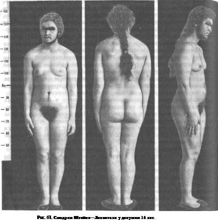 Синдром Штейна-Левенталя