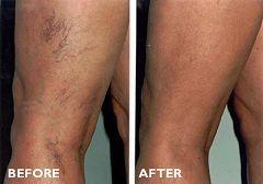 До і після склеротерапії