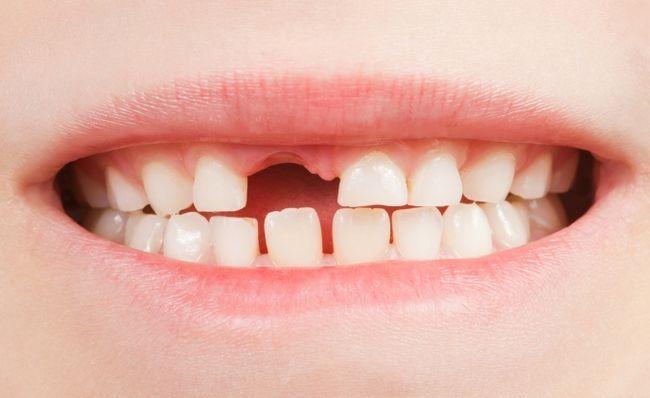 Зміна зубів у дітей