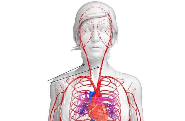 Сонна артерія