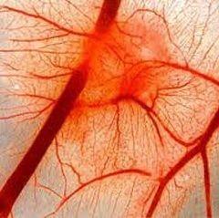 Порушення кровообігу - одна з причин судинної недостатності