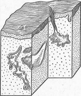 Залізисті структури вагінальної частини шийки матки