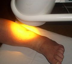 Шкірні інфекції - показання до світлотерапії