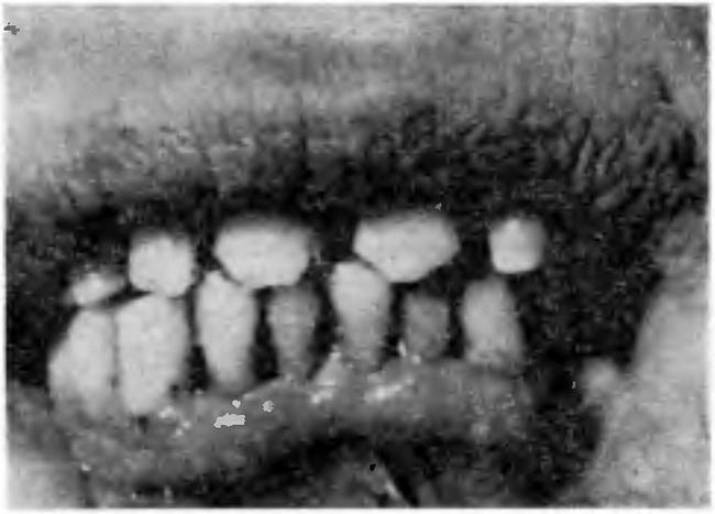 Відкол частини коронки фронтального зуба