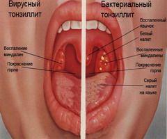 Симптоми вірусного і бактеріального тонзиліту