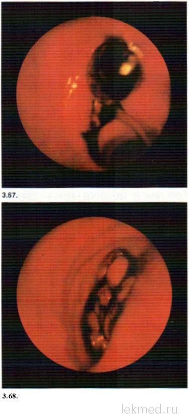 Щельовідні розрив головного бронха