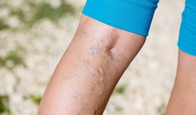 Тромбоз глибоких вен: 8 симптомів, що сигналізують про небезпеку