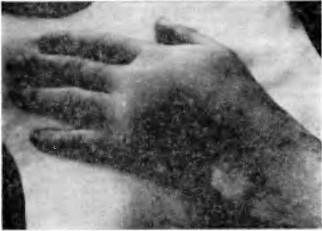 Набряк тильній поверхні кисті