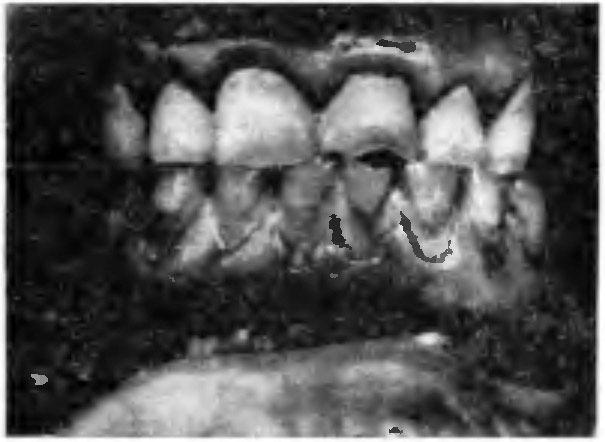 відкладення зубного каменю і сажі на зубах