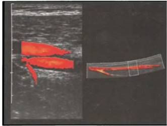 Поверхнева стегнова артерія і поверхнева стегнова вена з припливом