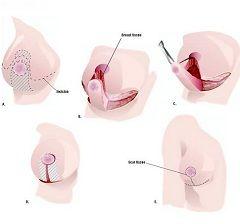 Принцип операції по зменшенню грудей
