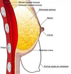 Операція по зменшенню грудей називається редукційна маммопластика
