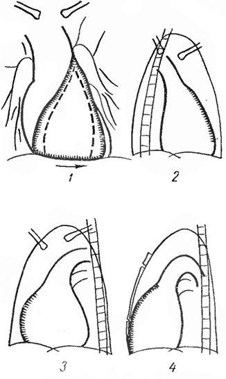 Збільшення правого шлуночка