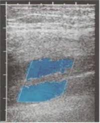 Розширені заднебольшеберцовие вени при посттромботической хвороби