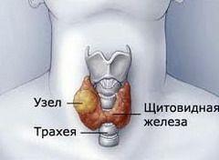 Вузловий зоб - узагальнююче визначення об`ємних новоутворень в щитовидній залозі