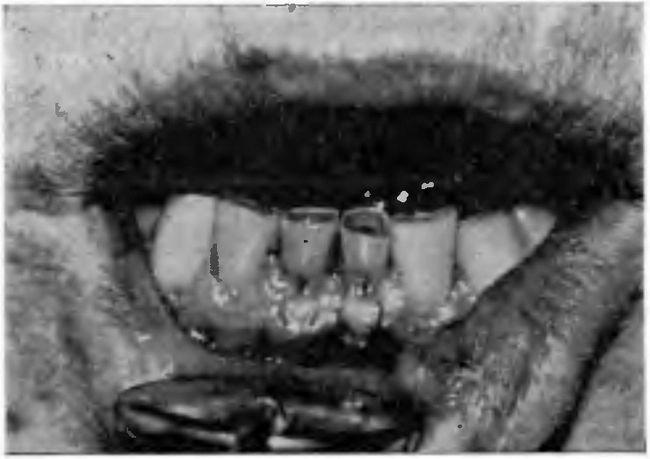 Стирання ріжучих країв зубів