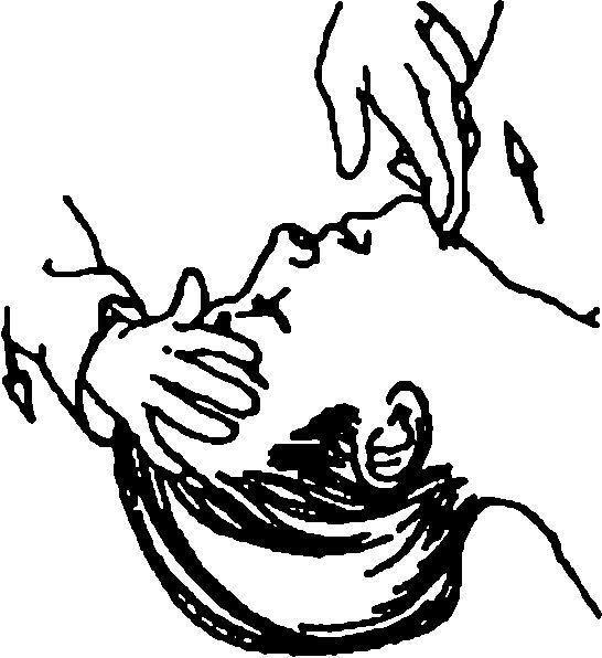 Спосіб звільнення дихальних шляхів