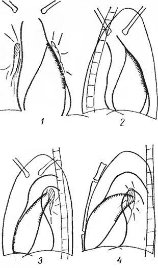 Вибухне і подовження легеневого стовбура