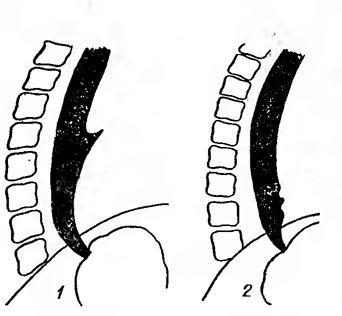 тракційний дивертикул середньої третини стравоходу