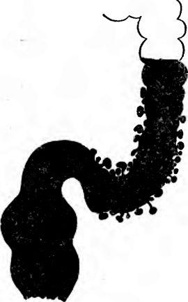 Випинання контуру кишки